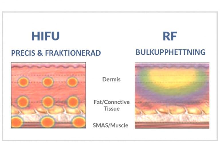 HIFU-RF
