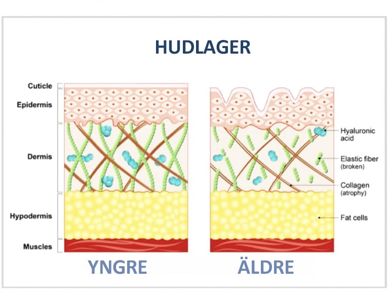Hudlager