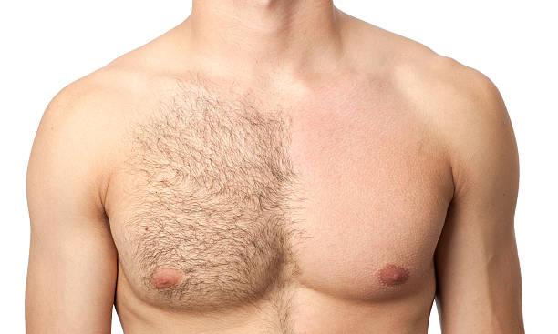 Haarentfernungs-Männer
